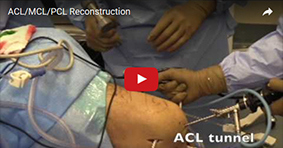 ACL/MCL/PCL Reconstruction