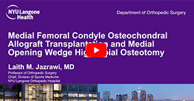Medial Femoral Condyle Osteochondral Allograft Transplantation and Medial Opening Wedge High Tibial