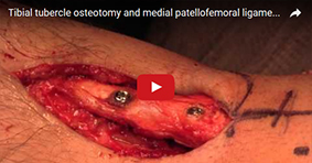 Tibial Osteotomy and Medial Patellofemoral Ligament Reconstruction