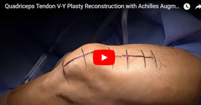 Quadriceps Tendon V-Y Plasty Reconstruction with Achilles Augmentation for Failed Quad Tendon Repair