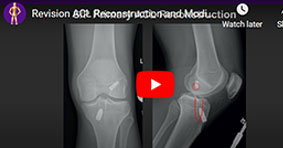 Revision ACL Reconstruction and Modified Lemaire ALL Reconstruction for Recurrent Instability