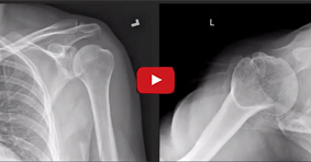Arthroscopic Bony Bankart Repair for Acute Traumatic Shoulder Dislocation