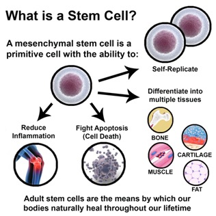 WHAT IS A STEM CELL PROCEDURE?